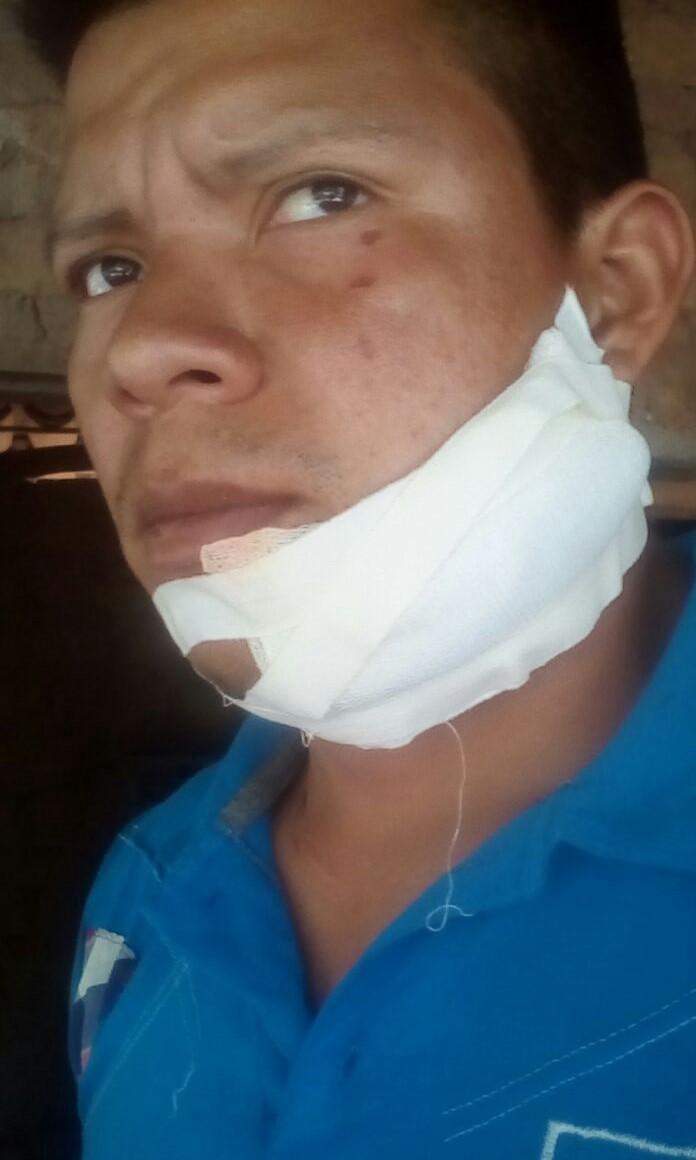 Misael Sánchez, semanas después de que un hombre encapuchado le cortara su cama con un machete después de una reunión del sindicato cerca de Choluteca, Honduras.
